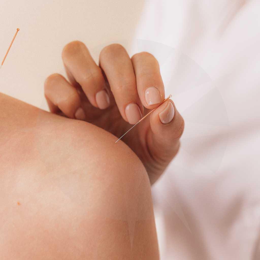 akupunktur antje willmes naturheilpraxis